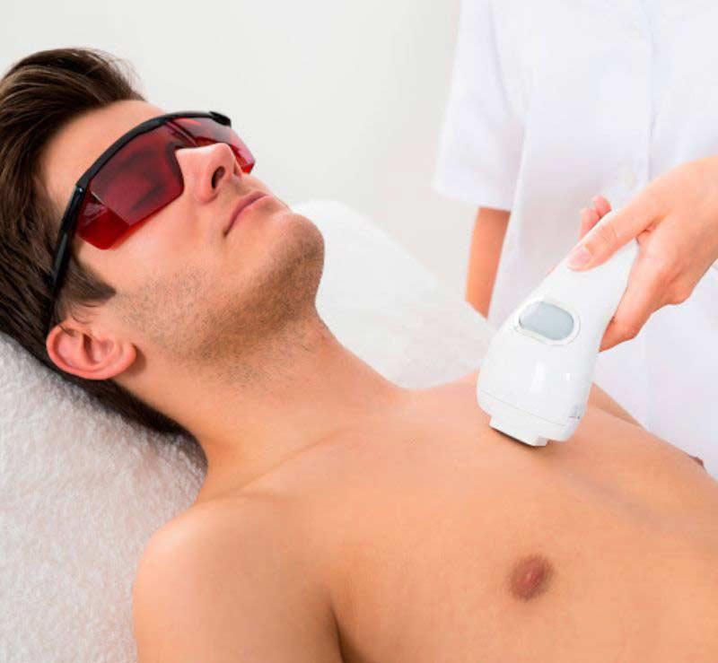 Tratamiento de depilacion permanente en Marbella