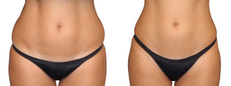 Lipoescultura · Tratamientos para perder peso