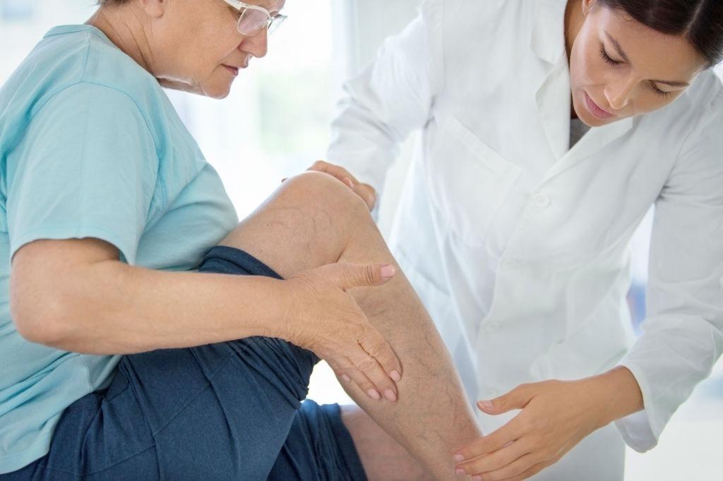 varices piernas