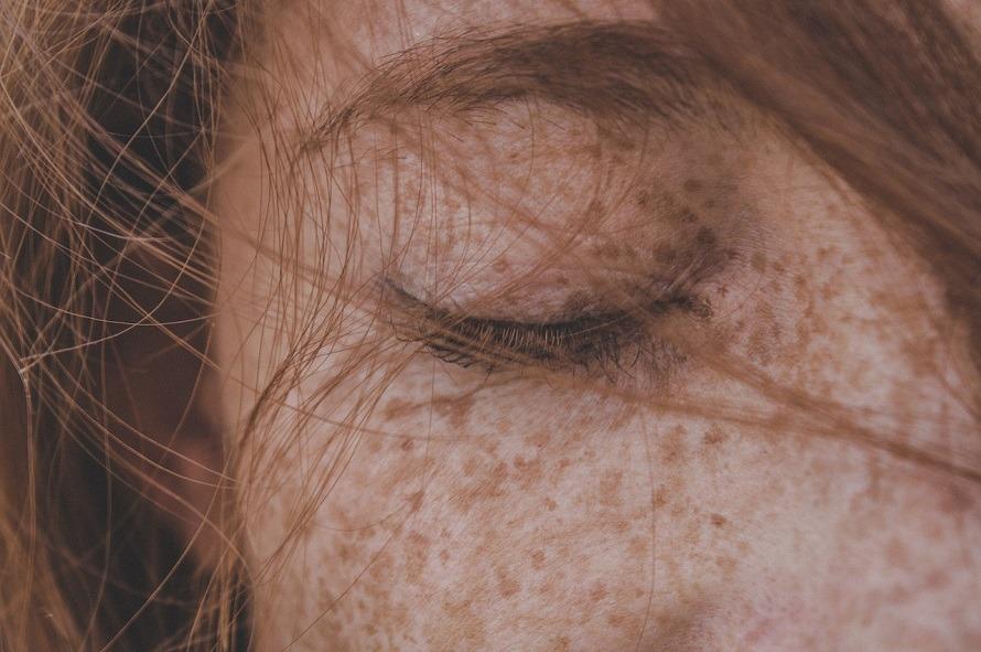 Motivos de las manchas en la cara